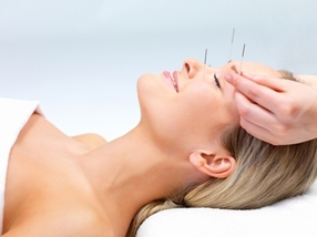 Acupuncture - The New Face Lift?  Linda Franklin The Real Cougar Woman