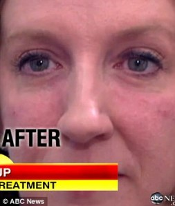 Undereye Bags Gone In 10 Minutes Linda Franklin The Real Cougar Woman